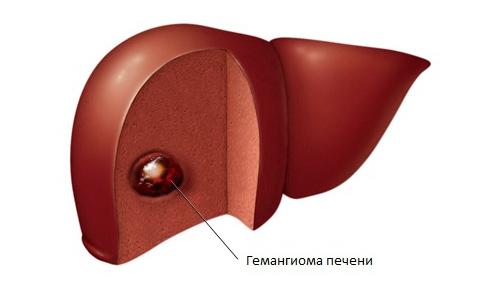 Гемангиома печени обнаруживается чаще, чем патология с другой локализацией