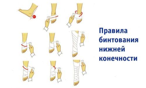 Чтобы бинты оказывали положительное воздействие на ноги и не навредили процессу кроветворения, ими нужно правильно пользоваться