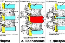 Схематическое изображение двух стадий остеохондроза