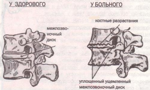 Дегенеративно-дистрофические изменения межпозвоночных дисков