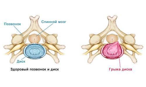 Фораминальная грыжа диска позвоночника