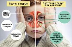 Гайморит - причина запаха из носа