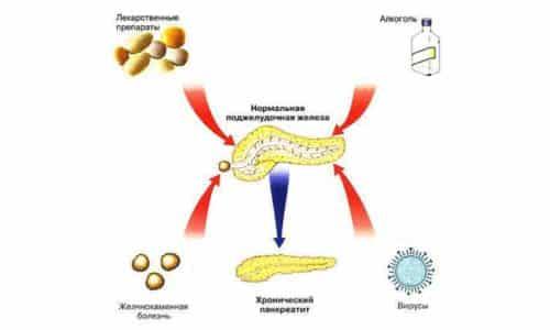 Основные причины хронического панкреатита