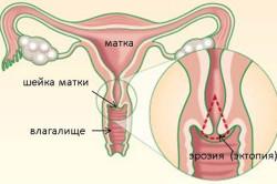 Эрозия шейки матки - причина желтых выделений