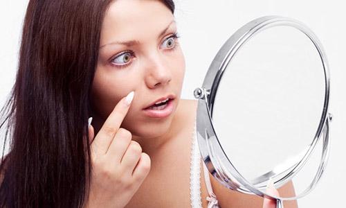 Купероз характерен для чувствительной кожи. Встречается довольно часто