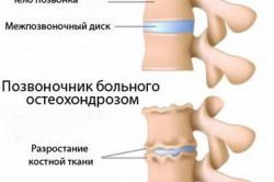 Клинические особенности остеохондроза