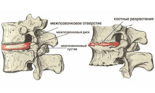 Межпозвоночная грыжа диска