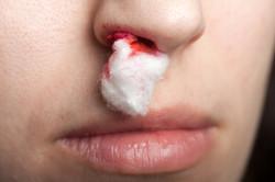 Носовые кровотечения - противопоказание к промываниям