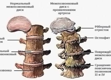Упражнения ЛФК при остеохондрозе поясничного отдела позвоночника