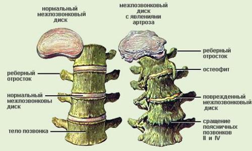 Остеохондроз шеи