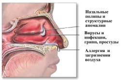 Причины гайморита