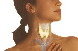 Мешки под глазами при заболеваниях щитовидной железы