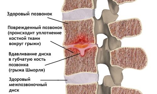 Схема грыжи Шморля