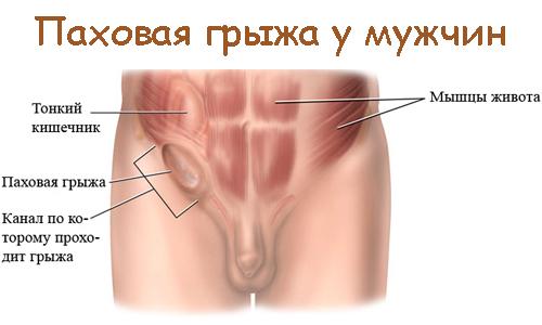 Схематическое изображение паховой грыжи