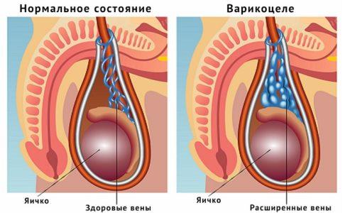 Варикоцеле способствует снижению количества подвижных сперматозоидов, что приводит к развитию мужского бесплодия