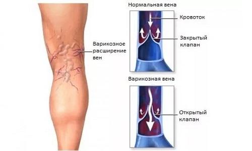Варикоз - это генетическое заболевание, которое характеризуется слабой стенкой у сосудов и недостаточностью клапана аппарата