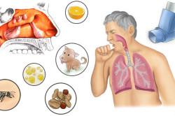 Провоцирующие факторы аллергического риносинусита
