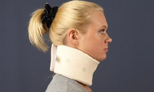 Во время лечения грыжи в шейном отделе позвоночника рекомендуется носить бандаж