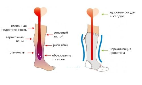 Применение компрессионного трикотажа позволяет поддерживать в тонусе стенки сосудов, предотвращая их растяжение, из-за которого появляется отечность ног, застаивается венозная кровь и возникают тромбы