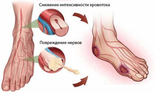 Трофическая язва обычно возникает при нарушении кровоснабжения определенного участка тела, и ее не считают отдельным заболеванием