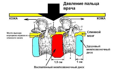 Диагностика остеохондроза при пальпации