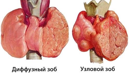 Диффузный токсический зоб - наиболее частая причина тиреотоксикоза