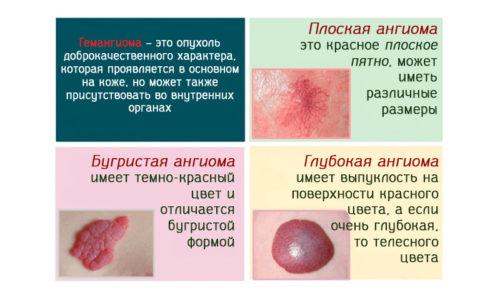 Гемангиомы подразделяют на множество разновидностей. От их классификации зависят методы лечения