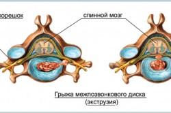 Схема межпозвонковой грыжи