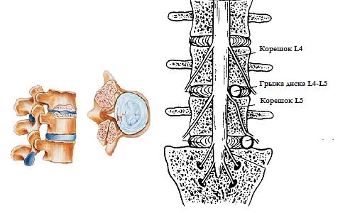 Расположение дорзальной диффузной грыжи диска L4 L5