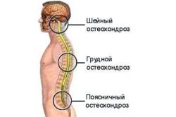 Схема шейно-грудного остеохондроз