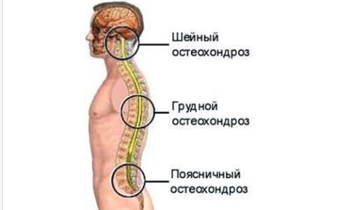 Очаги возникновения остеохондроза