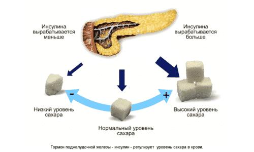 Дисбаланс работы поджелудочной без адекватной медицинской помощи приводит к развитию панкреатита, муковисцидоза и наиболее опасной патологии, а именно сахарного диабета