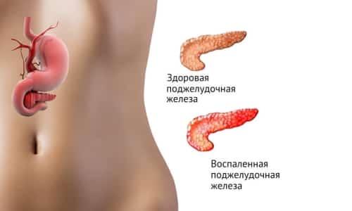 На третьем месте среди болезней, которые поражают желудочно-кишечный тракт, находится панкреатит, поэтому его профилактика так важна