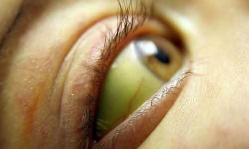 Желтуха - один из симптомов желчнокаменной болезни