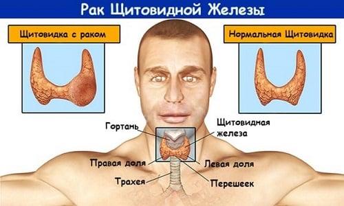 Папиллярная карцинома отличается поражением только одной доли щитовидной железы