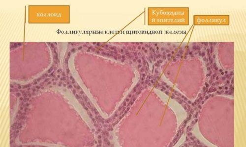 Желеобразное вещество, заполняющее полость фолликула, носит название коллоида