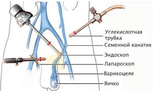 Операция по удалению варициколе проводится под общим наркозом и тщательным наблюдением специалистов