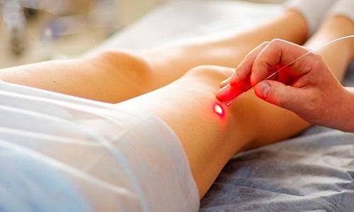Эндовазальная лазерная коагуляция варикозных вен - безоперационное лечение пораженных вен