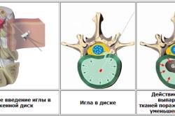 Лечение межпозвоночной грыжи лазером