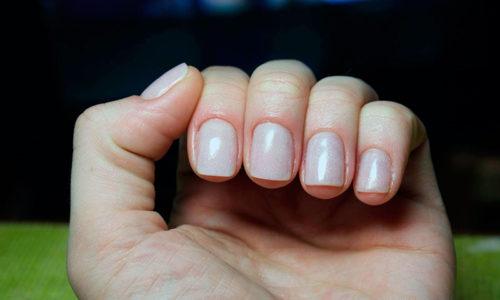При аутоиммунной форме тиреоидита наряду с прочими симптомами наблюдается ломкость ногтей и волос