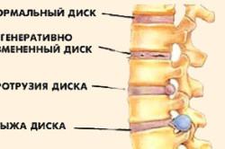 Клинические проявления протрузии дисков