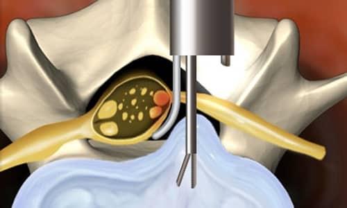 Дискэктомию шейного отдела выполняют через разрез на шее или через прокол