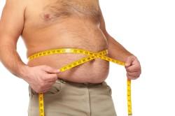 Склонность к развитию грыжи белой линии живота при ожирении