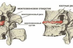 Позвонки при шейном остеохондрозе