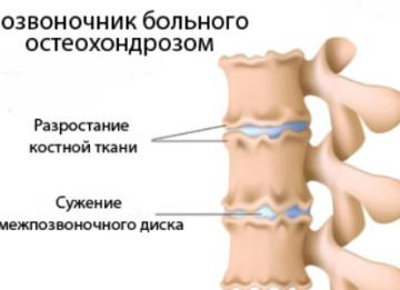 Зарядка при остеохондрозе позвоночника