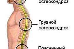 Локализация остеохондроза по отделам позвоночника