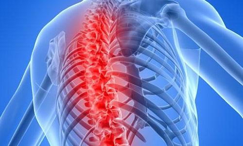 Проблема грудного остеохондроза