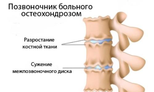 Позвоночник больного остеохондрозом