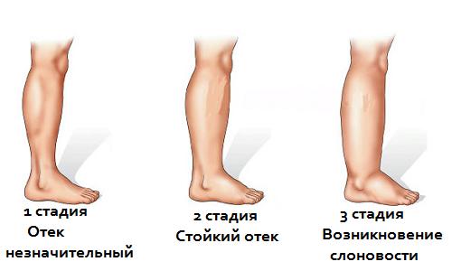 Стадии лимфостаза нижних конечностей