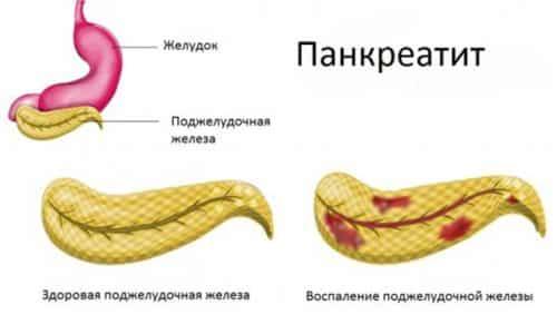 Схема панкреатита. Панкреатит – это воспаление поджелудочной железы, которое, как правило, требует лечения антибиотиками в стационаре